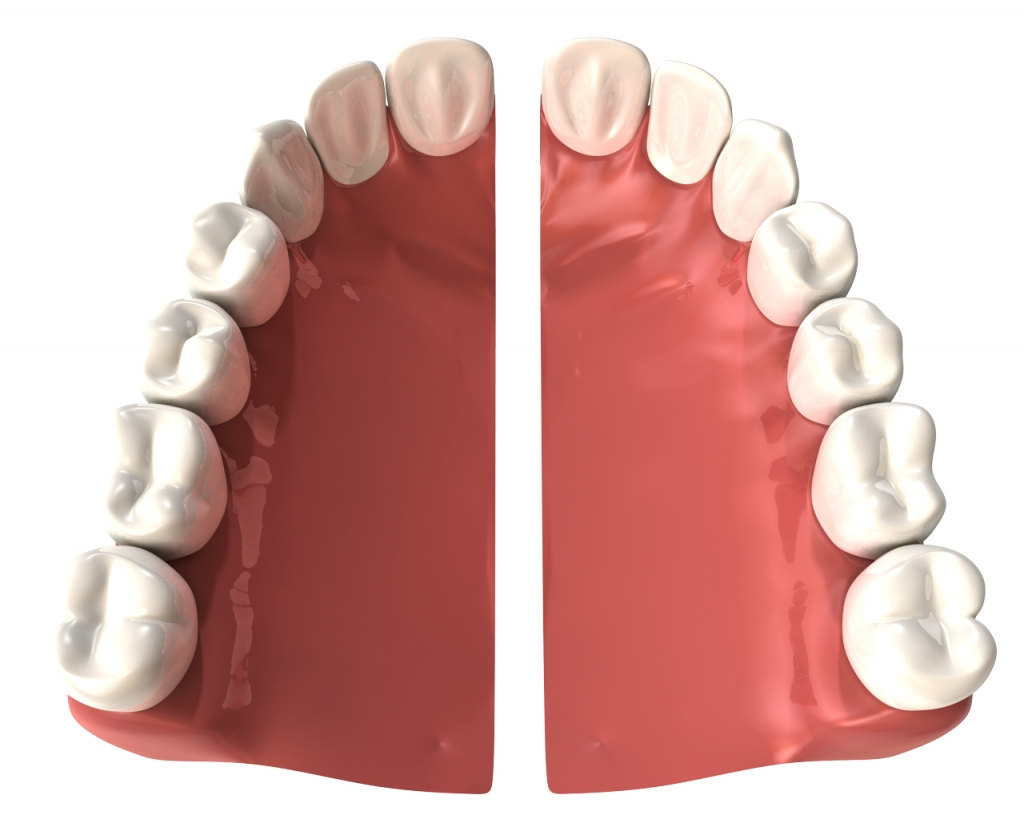 Denture repairs midwest dentures mouthguards never carry out repairs all by yourself as this can damage your dentures more or worse still it can harm your mouth and teeth solutioingenieria Images